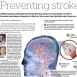 Using Engineering to Predict Stroke